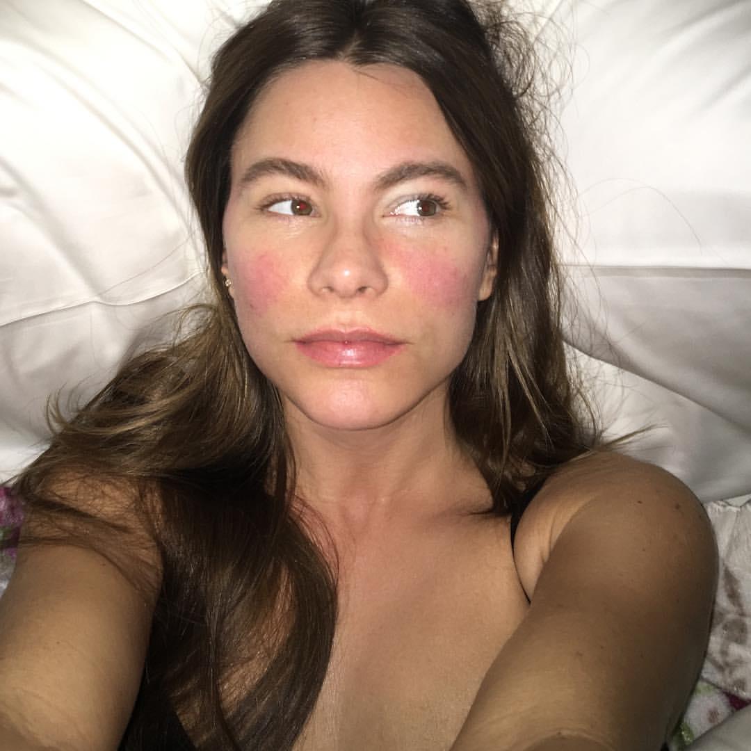 El irreconocible rostro de Sofía Vergara en esta foto enferma
