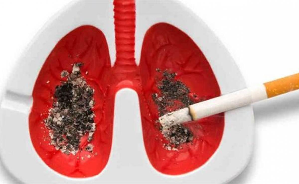 Cuba reporta tasa elevada de muertes por cáncer en las vías respiratorias