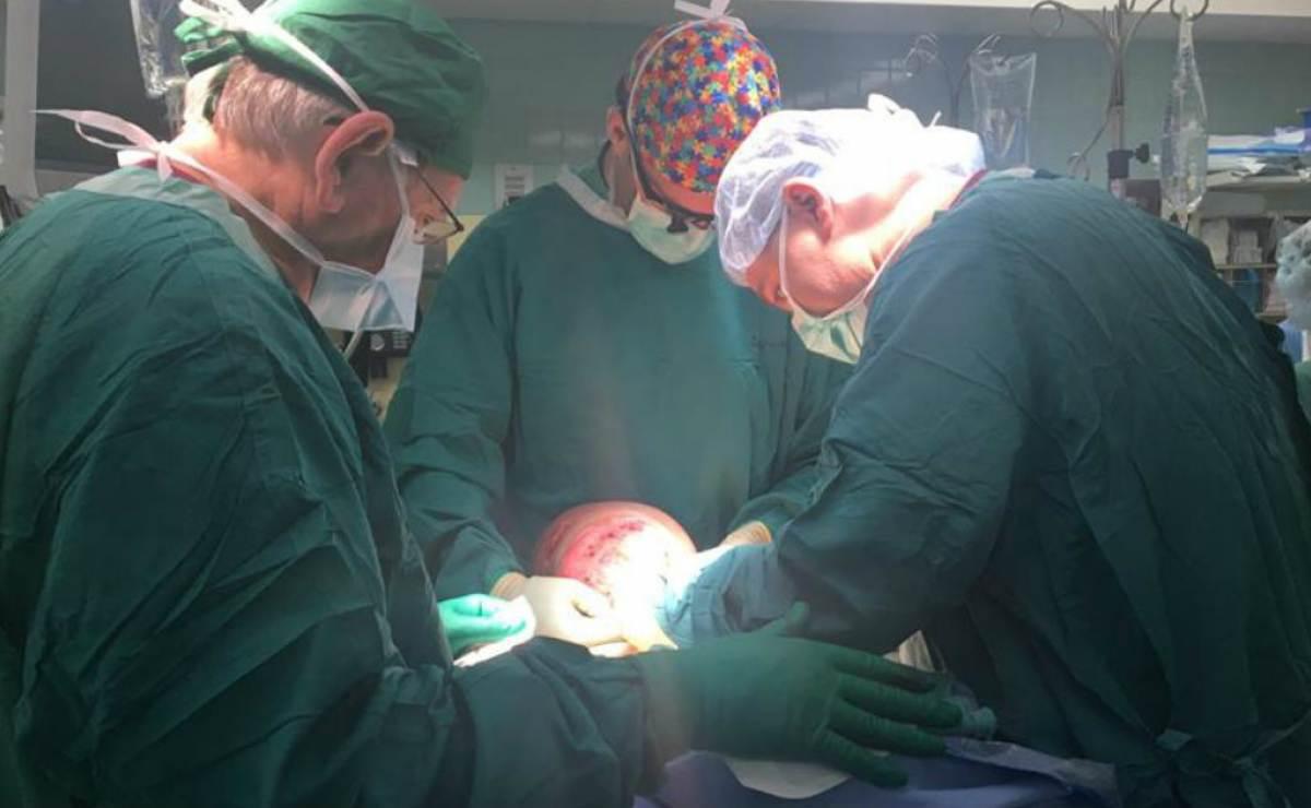 Emanuel, niño cubano con tumor en el rostro, falleció tras operación